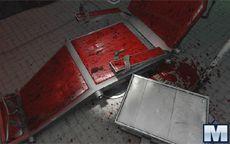 Killer Escape 2. The Surgery